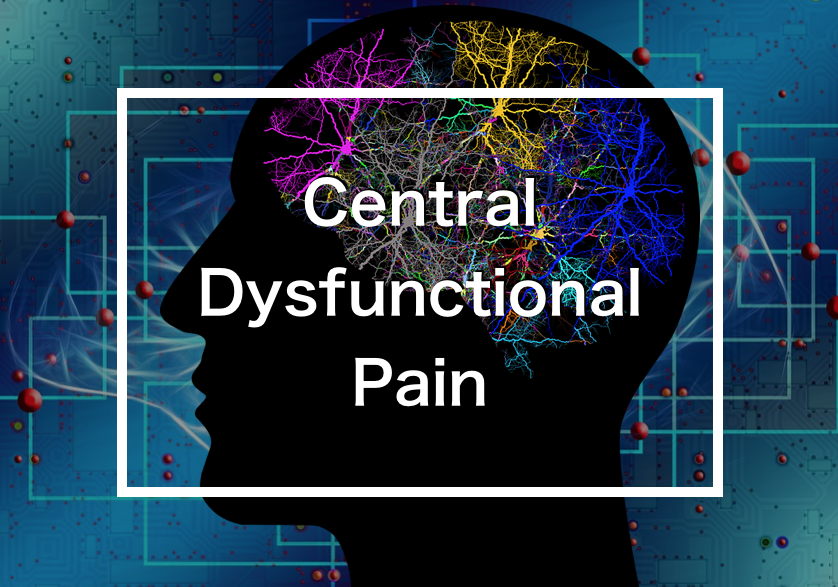 中枢機能障害性疼痛